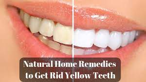 Getting Rid Of Yellow Teeth With These Simple And Handy Tips Health Care