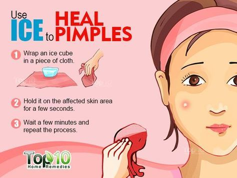 HOW TO GET RID OF ACNES AT HOME Health Care